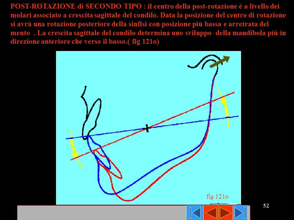52 POST-ROTAZIONE di SECONDO TIPO : il centro della post-rotazione è a livello dei molari associato a crescita sagittale del condilo. Data la posizion