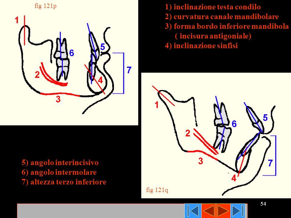54 fig 121p fig 121q 1) inclinazione testa condilo 2) curvatura canale mandibolare 3) forma bordo inferiore mandibola ( incisura antigoniale) 4) incli