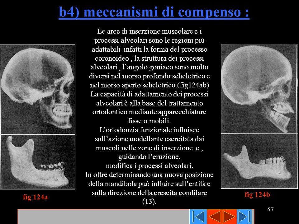 57 b4) meccanismi di compenso : Le aree di inserzione muscolare e i processi alveolari sono le regioni più adattabili infatti la forma del processo co