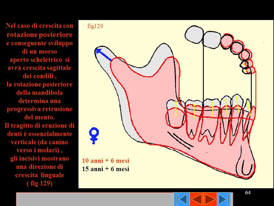64 fig129 10 anni + 6 mesi 15 anni + 6 mesi Nel caso di crescita con rotazione posteriore e conseguente sviluppo di un morso aperto scheletrico si avr