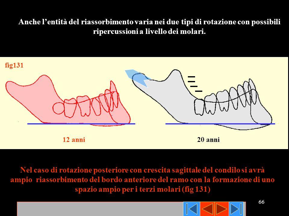 66 Anche lentità del riassorbimento varia nei due tipi di rotazione con possibili ripercussioni a livello dei molari. Nel caso di rotazione posteriore