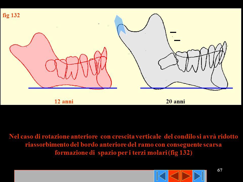 67 Nel caso di rotazione anteriore con crescita verticale del condilo si avrà ridotto riassorbimento del bordo anteriore del ramo con conseguente scar