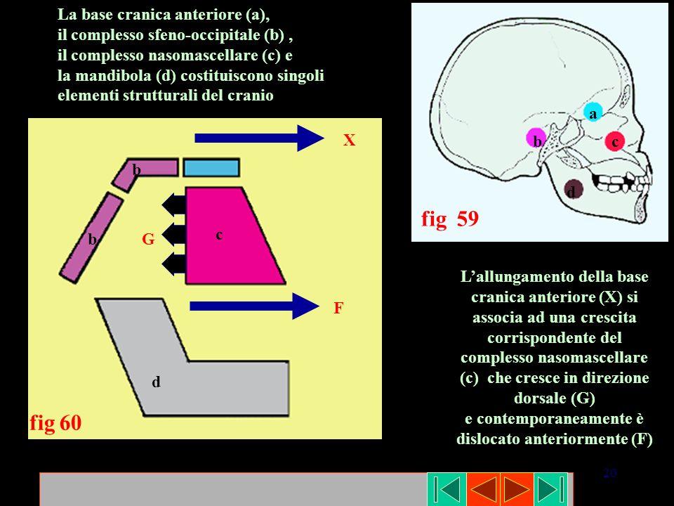 20 c b b d fig 60 a bc d fig 59 La base cranica anteriore (a), il complesso sfeno-occipitale (b), il complesso nasomascellare (c) e la mandibola (d) c