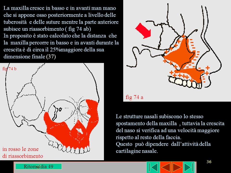 36 fig 74 b in rosso le zone di riassorbimento La maxilla cresce in basso e in avanti man mano che si appone osso posteriormente a livello delle tuber