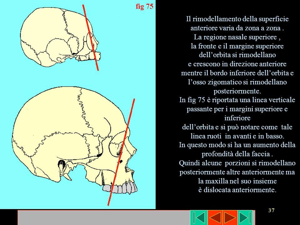 37 fig 75 Il rimodellamento della superficie anteriore varia da zona a zona. La regione nasale superiore, la fronte e il margine superiore dellorbita