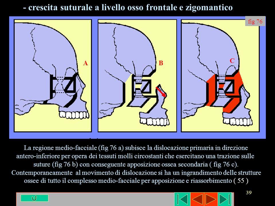 39 fig 76 AB C La regione medio-facciale (fig 76 a) subisce la dislocazione primaria in direzione antero-inferiore per opera dei tessuti molli circost