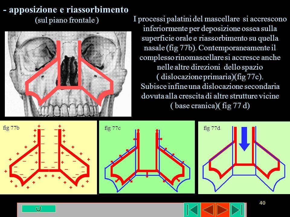 40 - apposizione e riassorbimento (sul piano frontale ) I processi palatini del mascellare si accrescono inferiormente per deposizione ossea sulla sup
