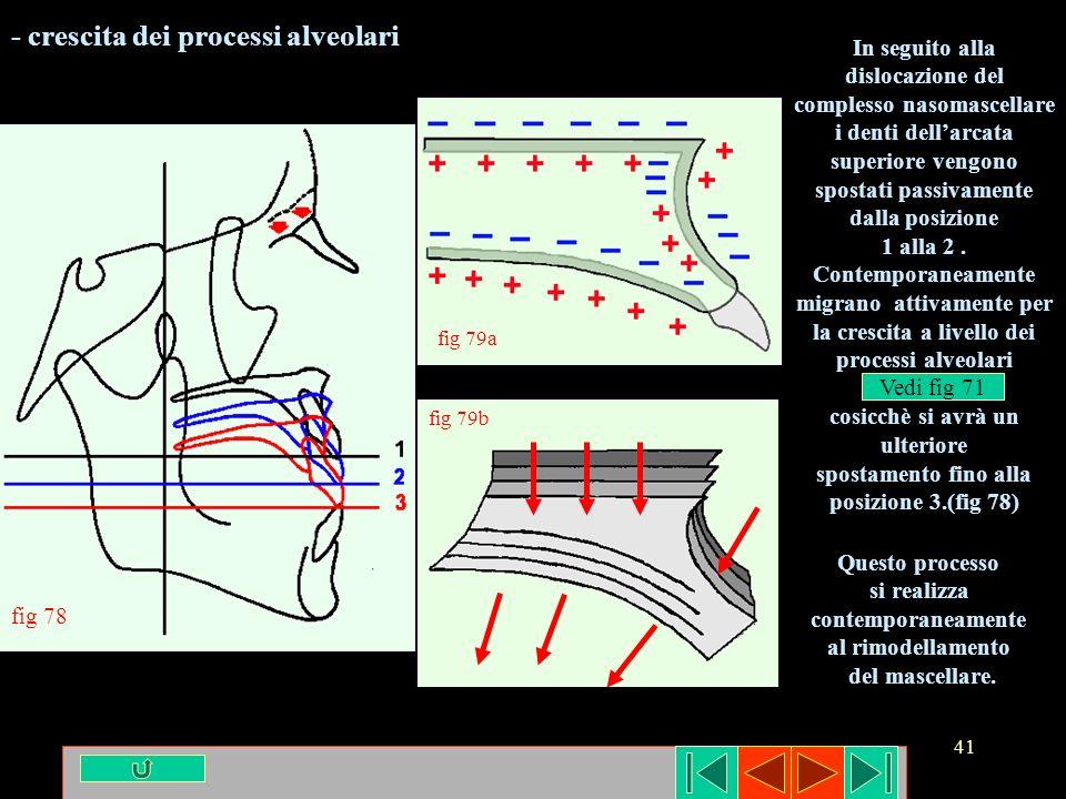 41 fig 78 fig 79a fig 79b - crescita dei processi alveolari In seguito alla dislocazione del complesso nasomascellare i denti dellarcata superiore ven
