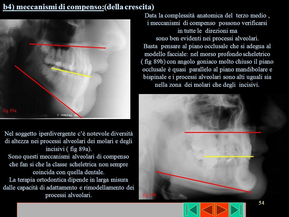 54 fig 89a fig 89b b4) meccanismi di compenso:(della crescita) Nel soggetto iperdivergente cè notevole diversità di altezza nei processi alveolari dei