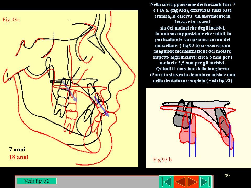 59 Nella sovrapposizione dei tracciati tra i 7 e i 18 a. (fig 93a), effettuata sulla base cranica, si osserva un movimento in basso e in avanti sia de