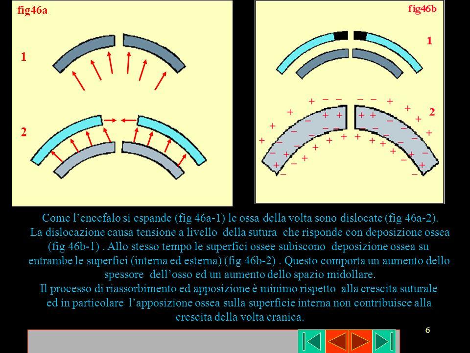 6 fig46a 1 2 Come lencefalo si espande (fig 46a-1) le ossa della volta sono dislocate (fig 46a-2). La dislocazione causa tensione a livello della sutu