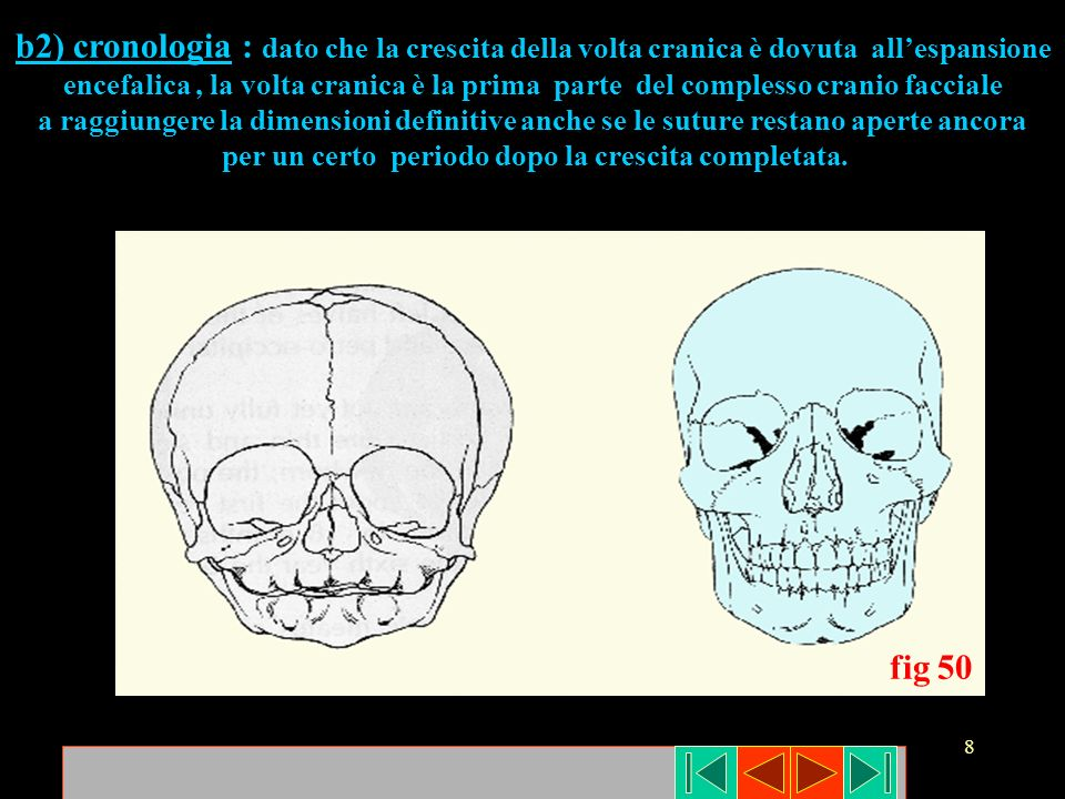 39 fig 76 AB C La regione medio-facciale (fig 76 a) subisce la dislocazione primaria in direzione antero-inferiore per opera dei tessuti molli circostanti che esercitano una trazione sulle suture (fig 76 b) con conseguente apposizione ossea secondaria ( fig 76 c).