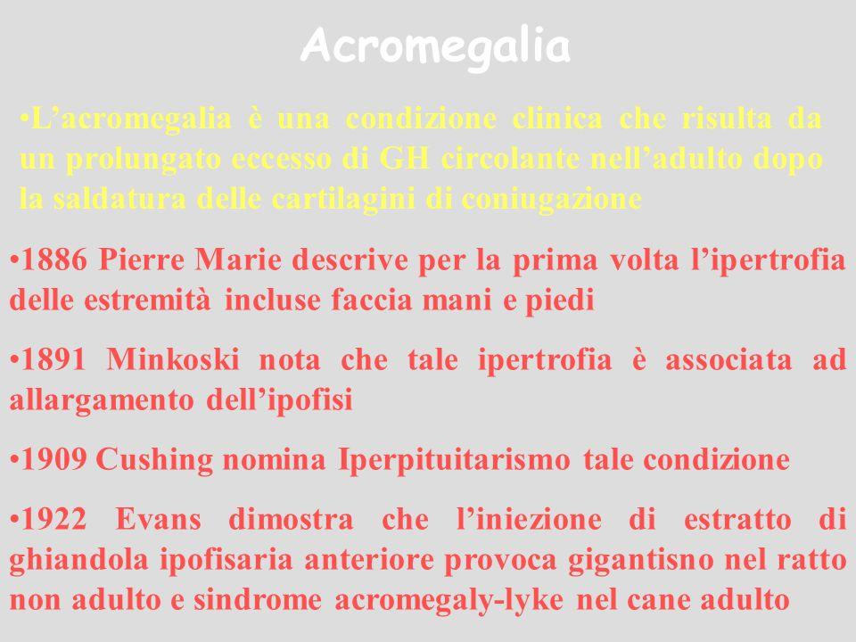 Acromegalia Lacromegalia è una condizione clinica che risulta da un prolungato eccesso di GH circolante nelladulto dopo la saldatura delle cartilagini