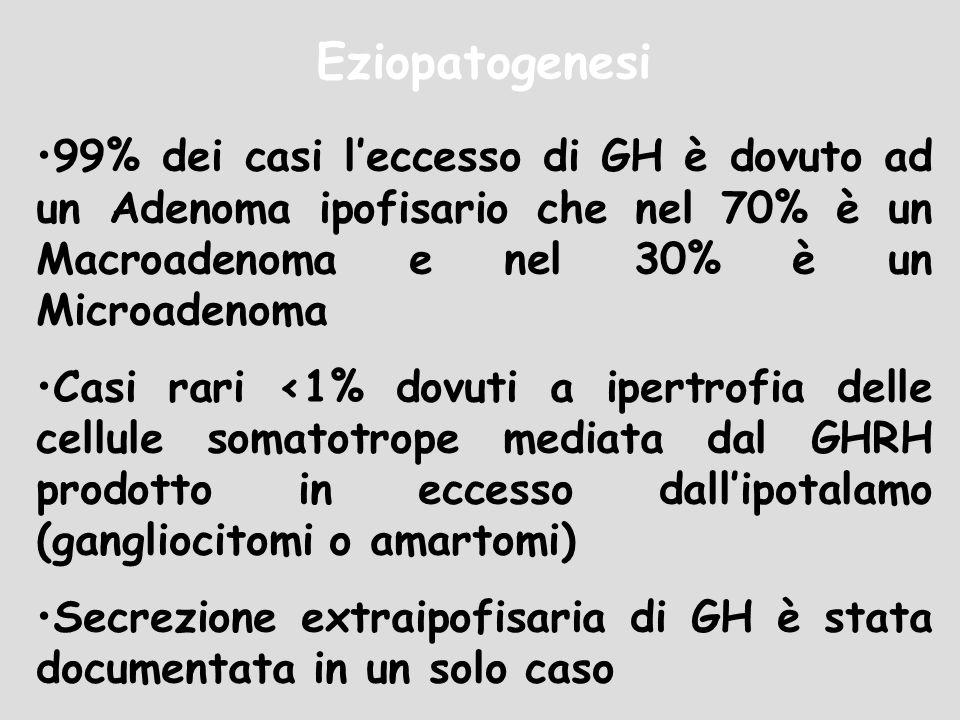 Eziopatogenesi 99% dei casi leccesso di GH è dovuto ad un Adenoma ipofisario che nel 70% è un Macroadenoma e nel 30% è un Microadenoma Casi rari <1% d