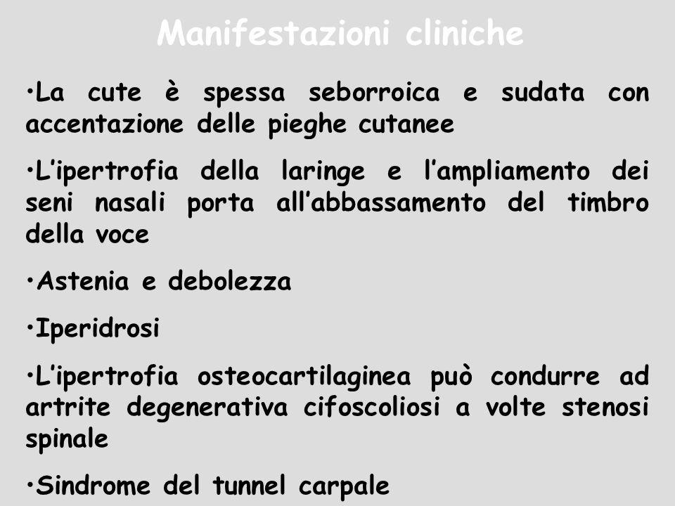Manifestazioni cliniche La cute è spessa seborroica e sudata con accentazione delle pieghe cutanee Lipertrofia della laringe e lampliamento dei seni n