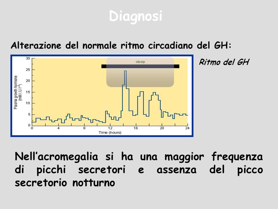 Diagnosi Alterazione del normale ritmo circadiano del GH: Ritmo del GH Nellacromegalia si ha una maggior frequenza di picchi secretori e assenza del p