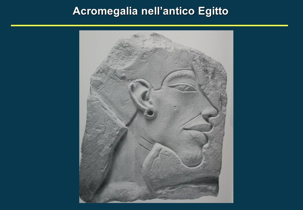 Acromegalia nellantico Egitto