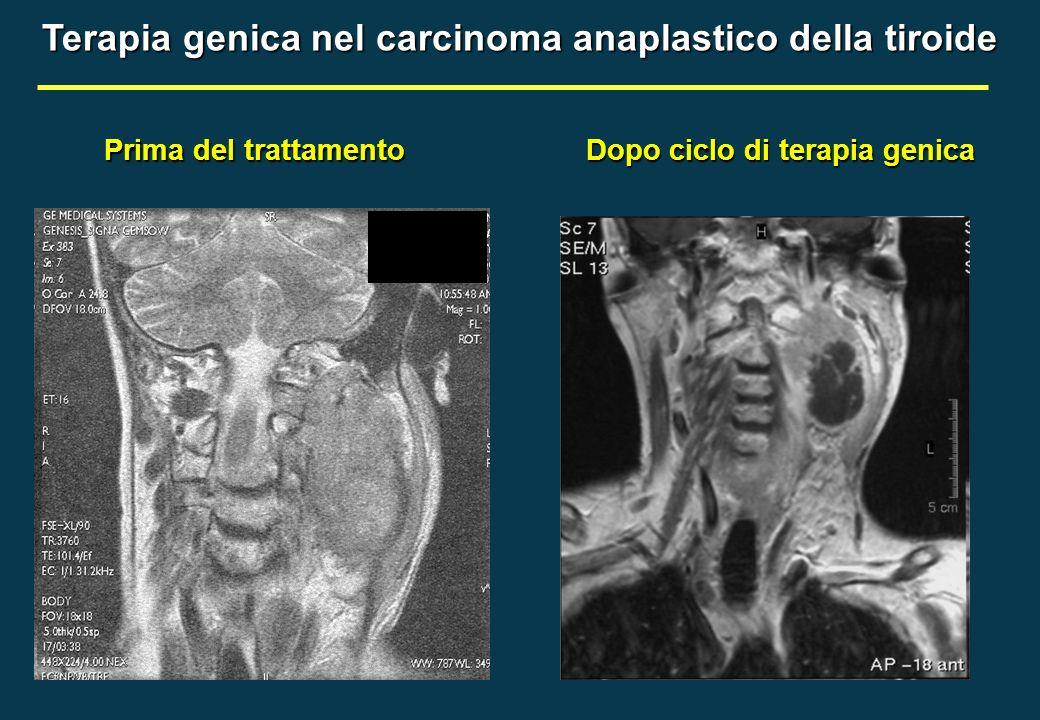 Prima del trattamento Dopo ciclo di terapia genica Terapia genica nel carcinoma anaplastico della tiroide