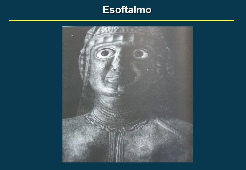 Esoftalmo
