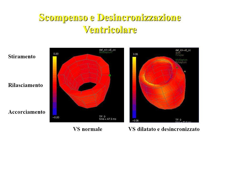 Scompenso e Desincronizzazione Ventricolare Stiramento Rilasciamento Accorciamento VS normaleVS dilatato e desincronizzato