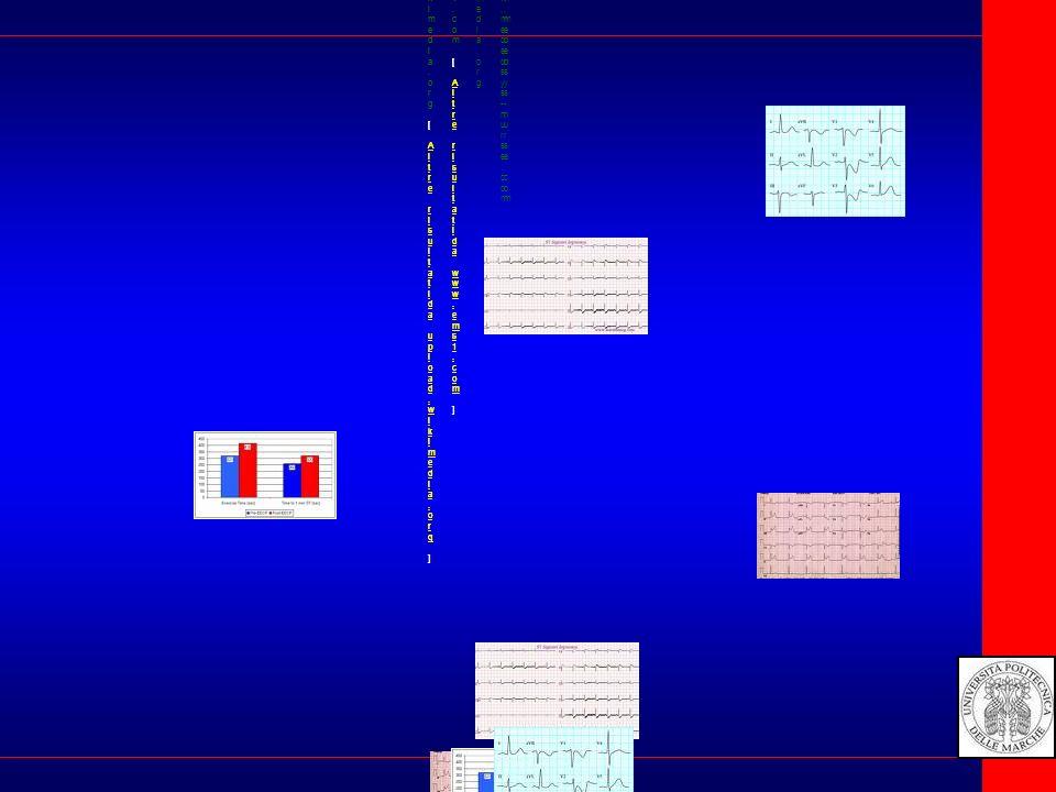 Image:12 Lead EKG ST Elevation...1911 x 1122 -2169kupload.wikimedia.org[ Altre risultatida upload.wikimedia.org ]Image:12 Lead EKG ST Elevation...1911 x 1122 -2169kupload.wikimedia.org[ Altre risultatida upload.wikimedia.org ] The EKG helps to make the final...874 x 437 -70k - jpgwww.ems1.com[ Altre risultatida www.ems1.com ]The EKG helps to make the final...874 x 437 -70k - jpgwww.ems1.com[ Altre risultatida www.ems1.com ] Image:12 Lead EKG ST Elevation...800 x 470 -158kcommons.wikimedia.orgImage:12 Lead EKG ST Elevation...800 x 470 -158kcommons.wikimedia.org Instead ofa Q wave and ST elevation...480 x 261 -30k - jpgwww.mededsys-nurse.comInstead ofa Q wave and ST elevation...480 x 261 -30k - jpgwww.mededsys-nurse.com The EKG shows ST elevation in leads...494 x 297 -31k - jpgwww.med.umich.eduThe EKG shows ST elevation in leads...494 x 297 -31k - jpgwww.med.umich.edu...ST depression (the EKG sign...493 x 302 -6k - gifwww.heartfixer.com...ST depression (the EKG sign...493 x 302 -6k - gifwww.heartfixer.com ST Segmentelevation...983 x 580 -208k - jpgwww.learntheecg.comST Segmentelevation...983 x 580 -208k - jpgwww.learntheecg.com...and ST depression and uprightT...440 x 350 -32k - gif...and ST depression and uprightT...440 x 350 -32k - gif Image:12 Lead EKG ST Elevation...1911 x 1122 -2169kupload.wikimedia.org[ Altre risultatida upload.wikimedia.org ]Image:12 Lead EKG ST Elevation...1911 x 1122 -2169kupload.wikimedia.org[ Altre risultatida upload.wikimedia.org ] The EKG helps to make the final...874 x 437 -70k - jpgwww.ems1.com[ Altre risultatida www.ems1.com ]The EKG helps to make the final...874 x 437 -70k - jpgwww.ems1.com[ Altre risultatida www.ems1.com ] I m a g e : 1 2 L e a d E K G S T E l e v a ti o n...