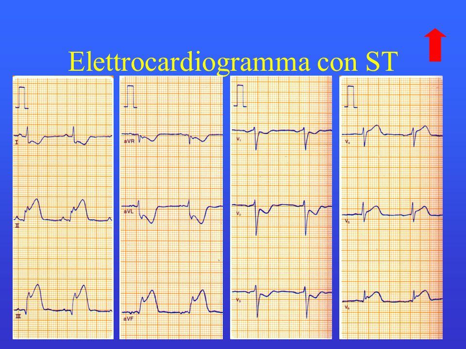 Elettrocardiogramma con ST