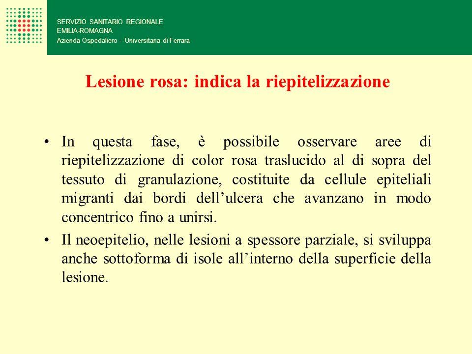 Lesione rosa: indica la riepitelizzazione SERVIZIO SANITARIO REGIONALE EMILIA-ROMAGNA Azienda Ospedaliero – Universitaria di Ferrara In questa fase, è