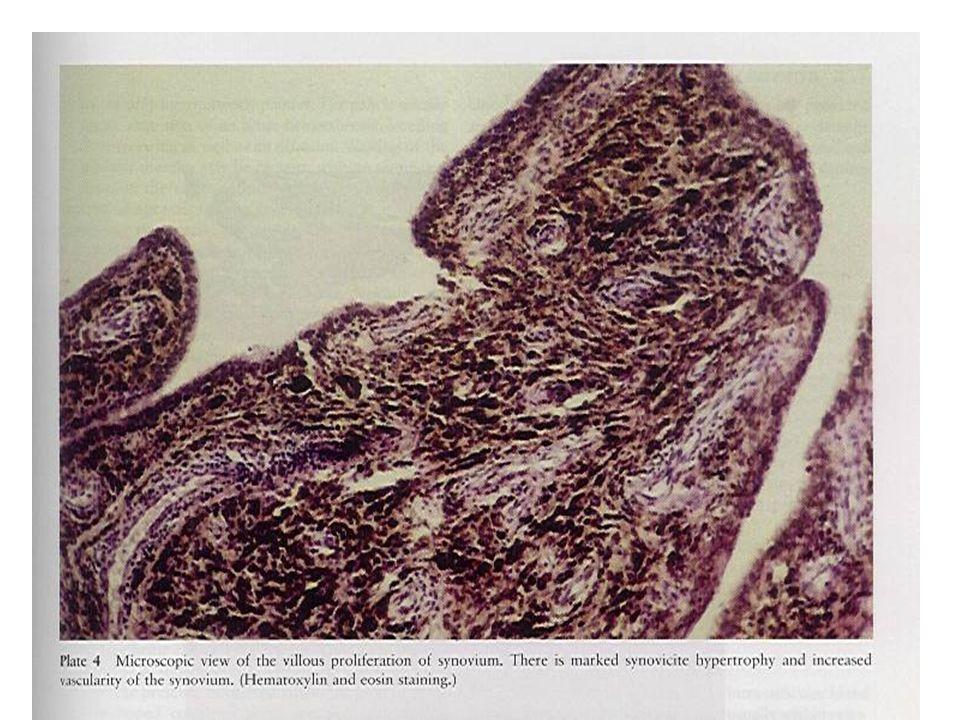 Il problema dellaccesso venoso Nei primi 18-24 mesi: catetere venoso centrale (CVC), esterno (Broviac) o tunnellizzato (Porth a cat).