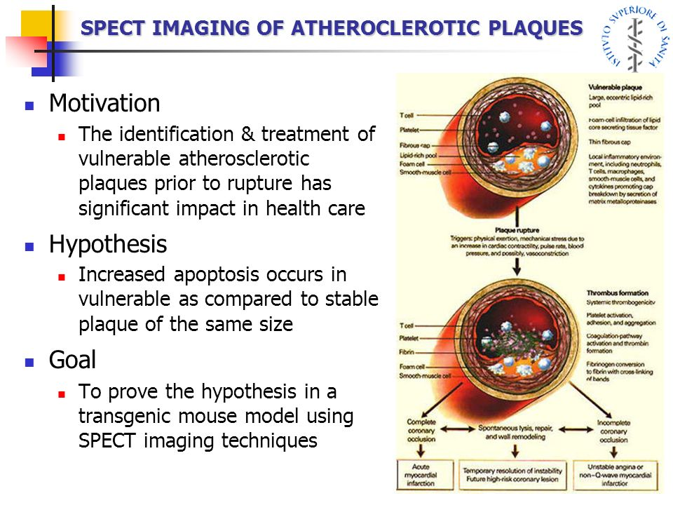 SPECT IMAGING OF ATHEROCLEROTIC PLAQUES Motivation The identification & treatment of vulnerable atherosclerotic plaques prior to rupture has significa