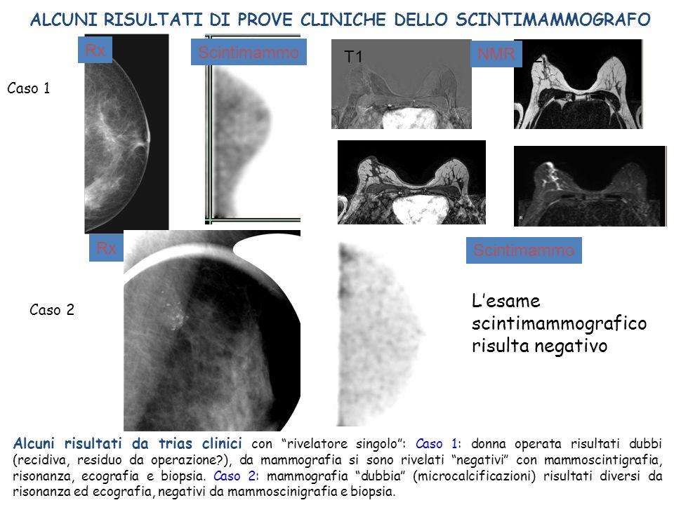 T1 T2 STIR Alcuni risultati da trias clinici con rivelatore singolo: Caso 1: donna operata risultati dubbi (recidiva, residuo da operazione?), da mamm