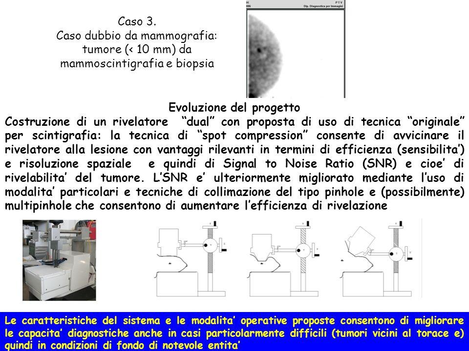 Vantaggi della spot compression in modalita duale: Miglior risoluzione spaziale, miglior sensibilita Migliore rivelabilita per tumori piccoli