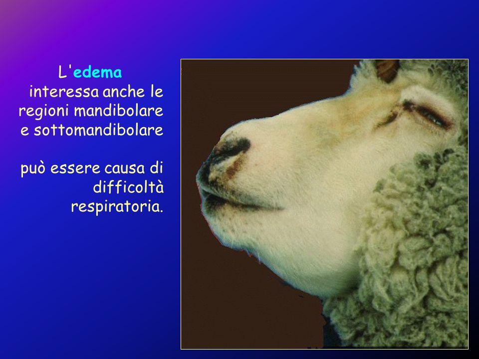 L'edema interessa anche le regioni mandibolare e sottomandibolare può essere causa di difficoltà respiratoria.