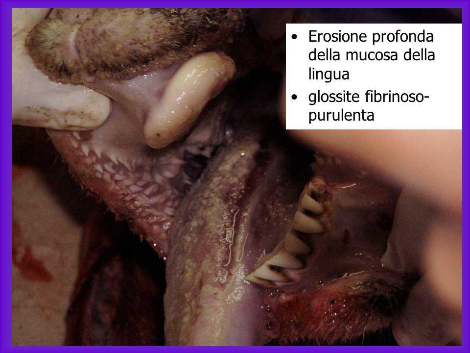 Erosione profonda della mucosa della lingua glossite fibrinoso- purulenta