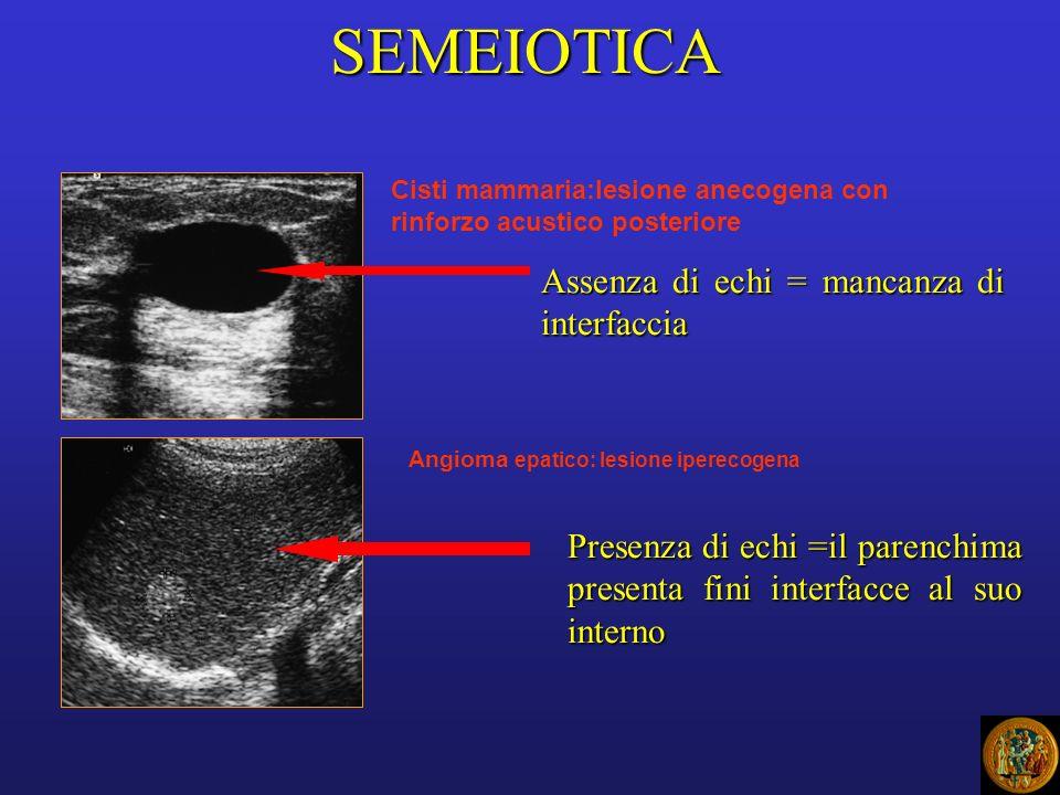 SEMEIOTICA Cisti mammaria:lesione anecogena con rinforzo acustico posteriore Assenza di echi = mancanza di interfaccia Angioma epatico: lesione iperecogena Presenza di echi =il parenchima presenta fini interfacce al suo interno