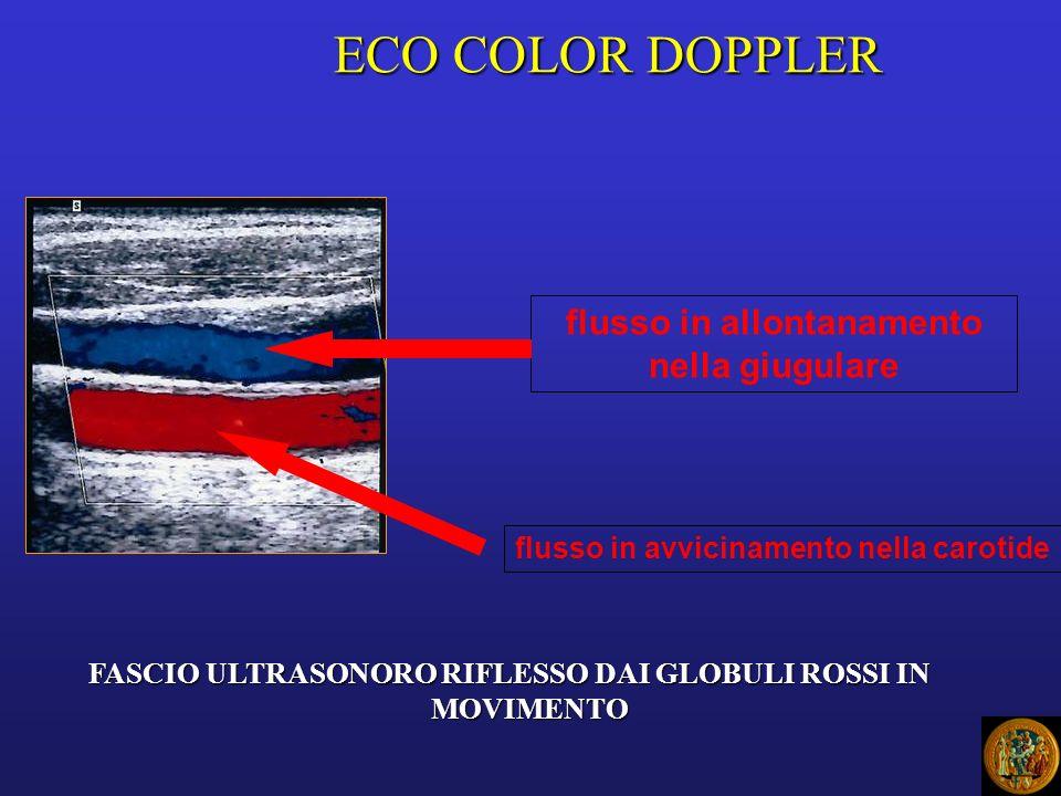 ECO COLOR DOPPLER flusso in allontanamento nella giugulare flusso in avvicinamento nella carotide FASCIO ULTRASONORO RIFLESSO DAI GLOBULI ROSSI IN MOVIMENTO