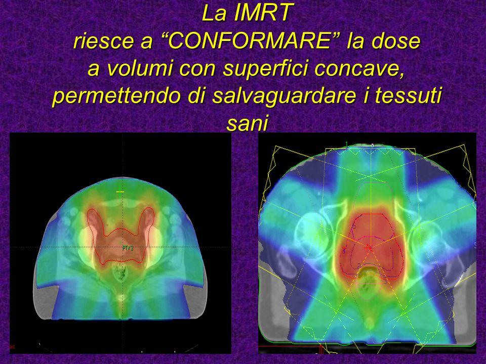La IMRT riesce a CONFORMARE la dose a volumi con superfici concave, permettendo di salvaguardare i tessuti sani