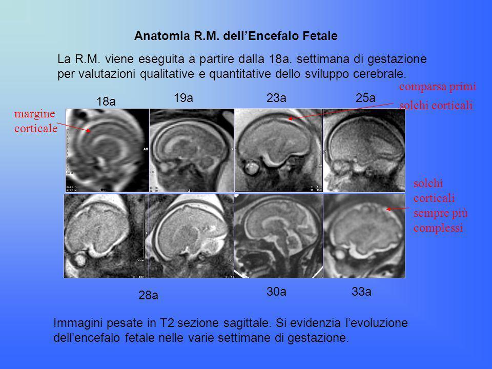 La R.M. viene eseguita a partire dalla 18a. settimana di gestazione per valutazioni qualitative e quantitative dello sviluppo cerebrale. Immagini pesa