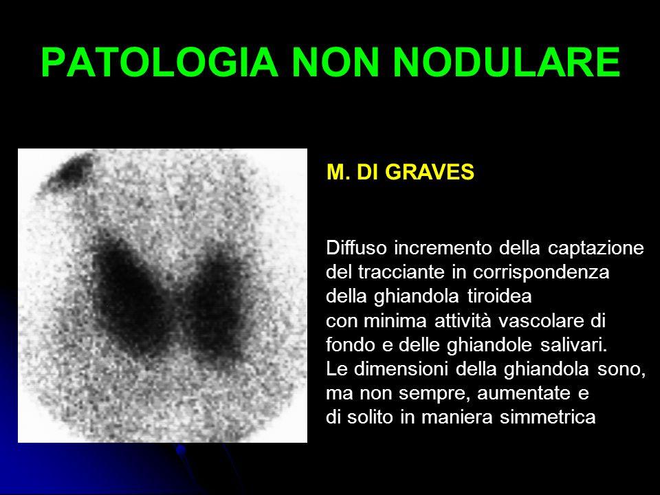 PATOLOGIA NON NODULARE M. DI GRAVES Diffuso incremento della captazione del tracciante in corrispondenza della ghiandola tiroidea con minima attività
