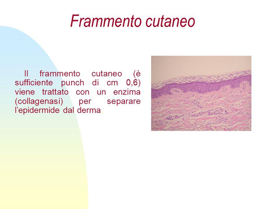 Nostri Prodotti solo cheratinociti cheratinociti su supporto di collagene fibroblasti su supporto di collagene cheratinociti e fibroblasti su supporto