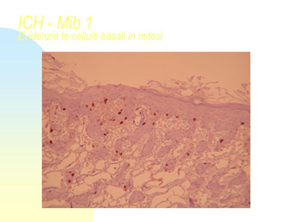 ICH - P63 Evidenzia le cellule del compartimento basale - staminale