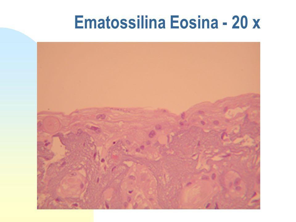 Ematossilina Eosina - 10 x