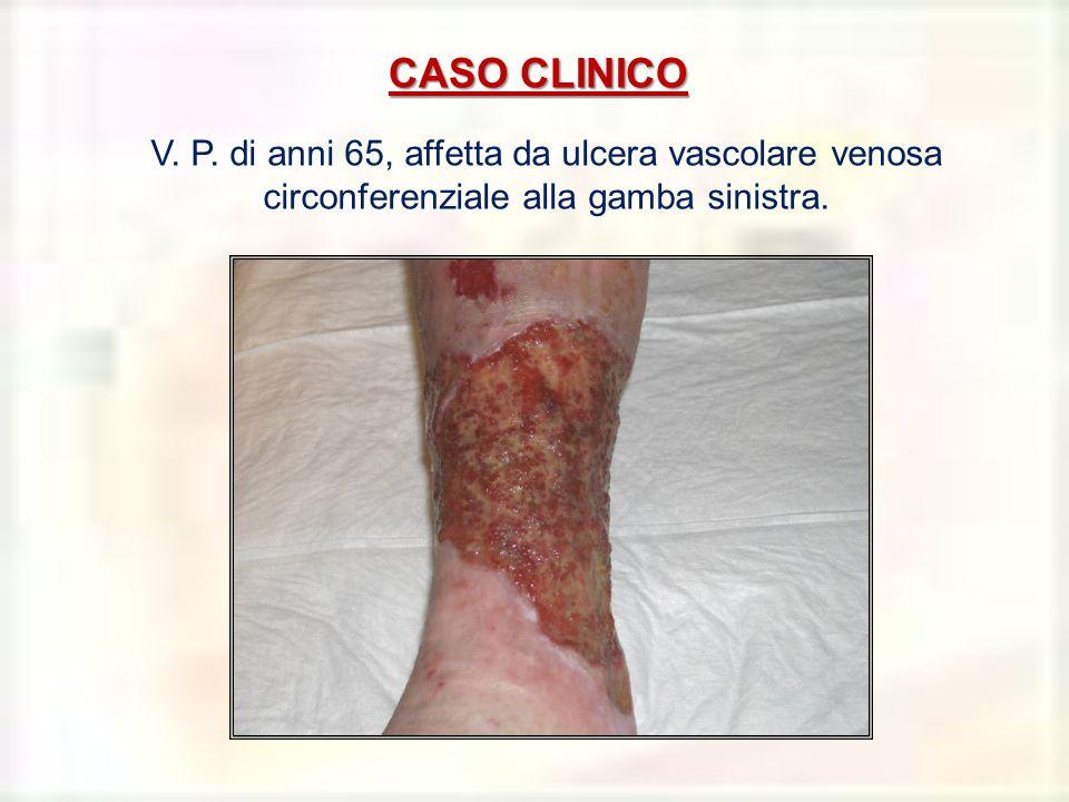 CASO CLINICO V. P. di anni 65, affetta da ulcera vascolare venosa circonferenziale alla gamba sinistra.