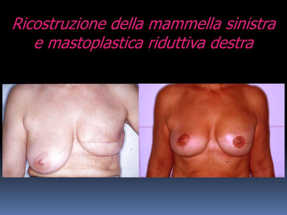 Ricostruzione della mammella sinistra e mastoplastica riduttiva destra