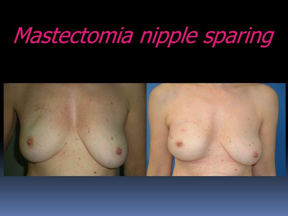 Mastectomia nipple sparing