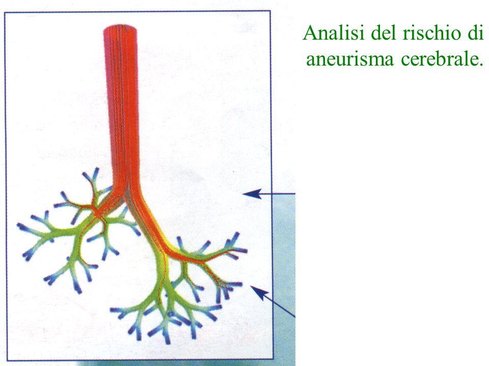 Analisi del rischio di aneurisma cerebrale.