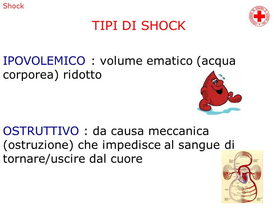 Shock TIPI DI SHOCK IPOVOLEMICO : volume ematico (acqua corporea) ridotto OSTRUTTIVO : da causa meccanica (ostruzione) che impedisce al sangue di torn