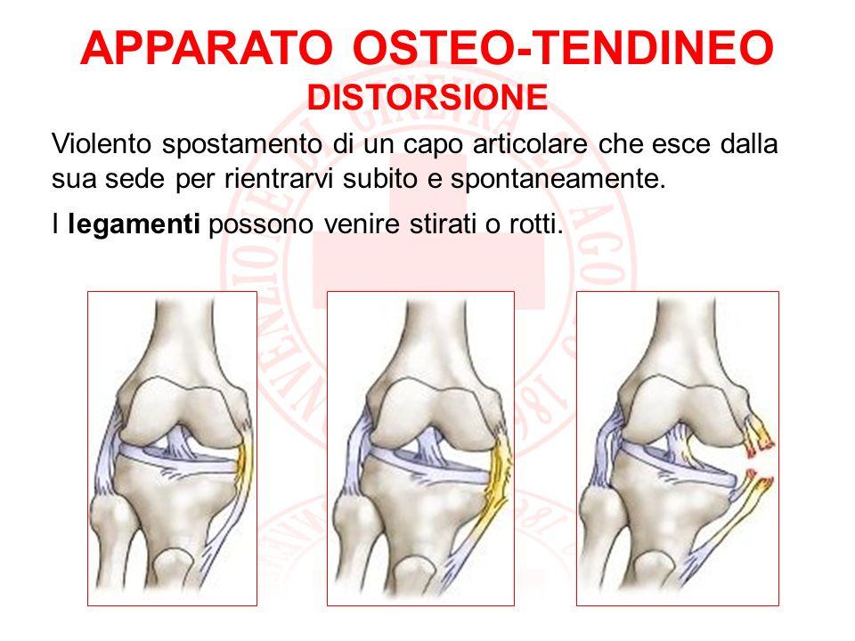 APPARATO OSTEO-TENDINEO DISTORSIONE : SAPER FARE Sono segni e sintomi di una distorsione: gonfiore e dolore Cosa fare in caso di distorsione.