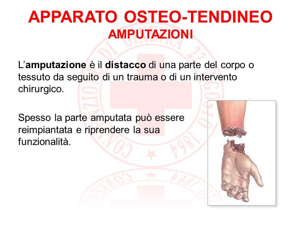 APPARATO OSTEO-TENDINEO AMPUTAZIONI: SAPER FARE (1) Il primo compito del soccorritore è quello di controllare lemorragia.