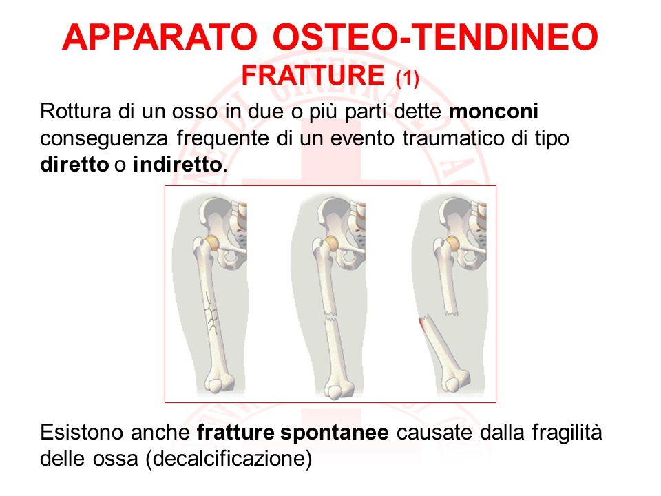 APPARATO OSTEO-TENDINEO FRATTURE (2) fratture chiuse: il tessuto muscolare e la pelle vicino alla frattura sono integri.