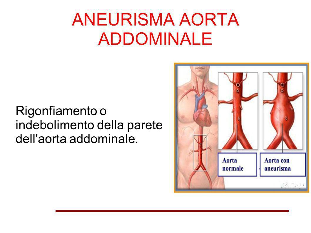 ANEURISMA AORTA ADDOMINALE Rigonfiamento o indebolimento della parete dell'aorta addominale.